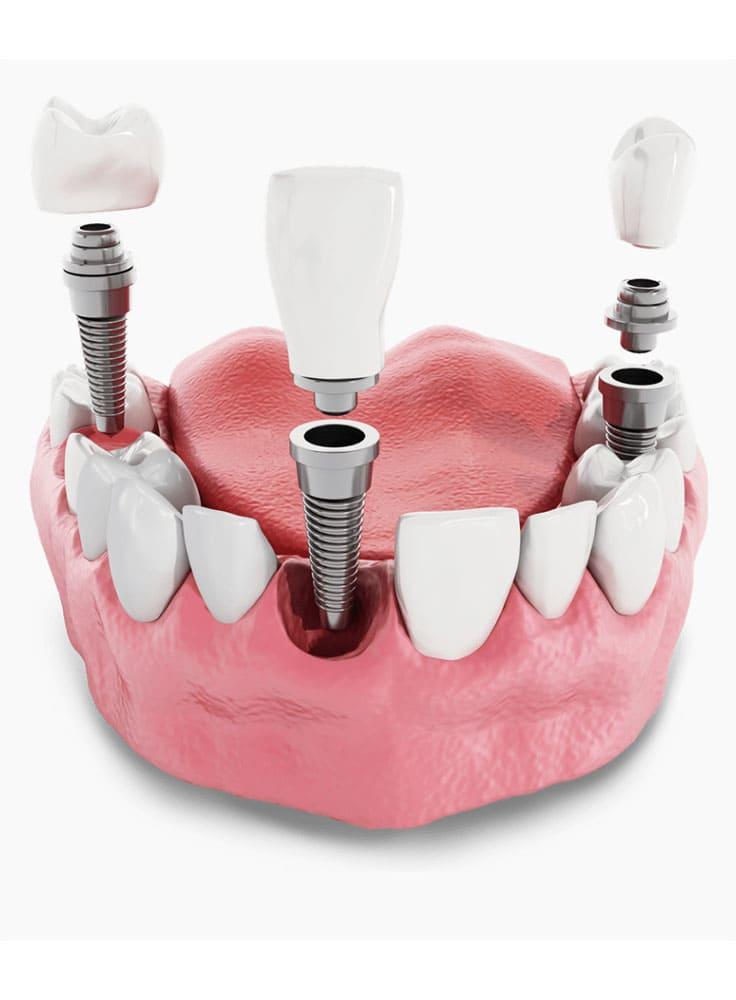 implantaciya3